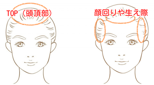 白髪の生えやすい場所を説明したイラスト画像