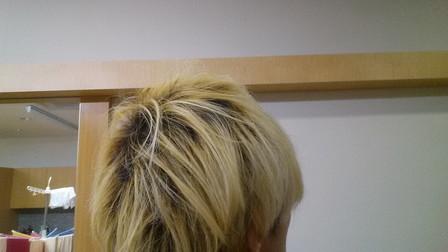 さらにホワイトブリーチする前の写真 右後頭部