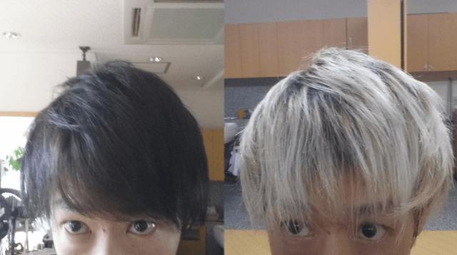 黒染め前と黒染め一週間後の比較の写真