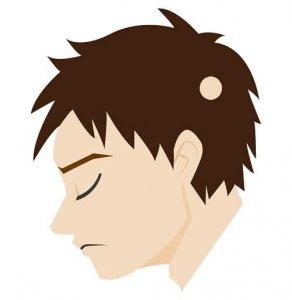 単発型円形脱毛症の症状の画像