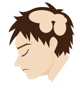 多発融合型円形脱毛症の症状の画像