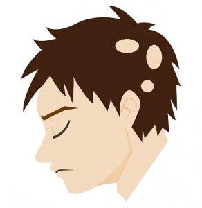 多発型円形脱毛症の症状の画像