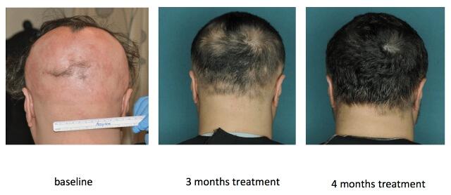 コロンビア大学の円形脱毛症治療の研究結果の写真