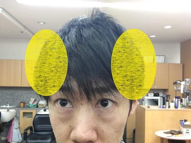 人間のハチの部分の写真