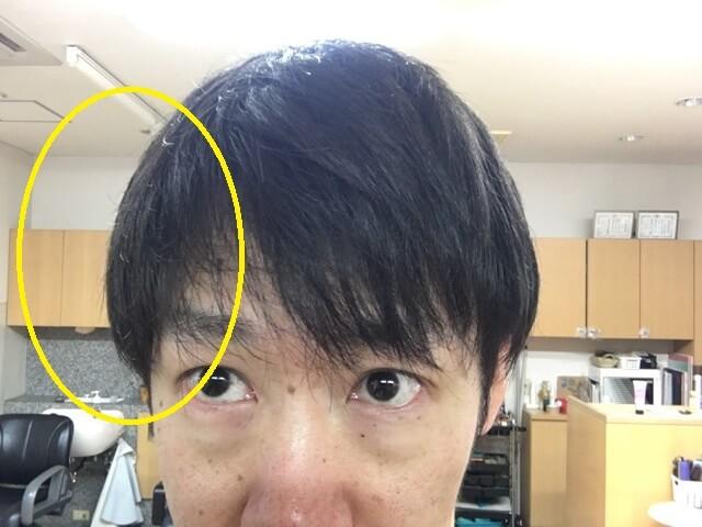 両方洗い流さないトリートメントを付けた髪の写真