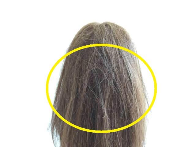 後頭部が絡まっている髪の毛の写真