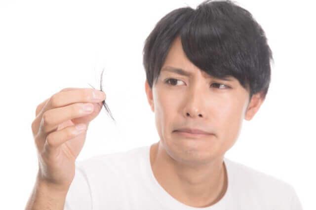 抜け毛を持つ男性の写真