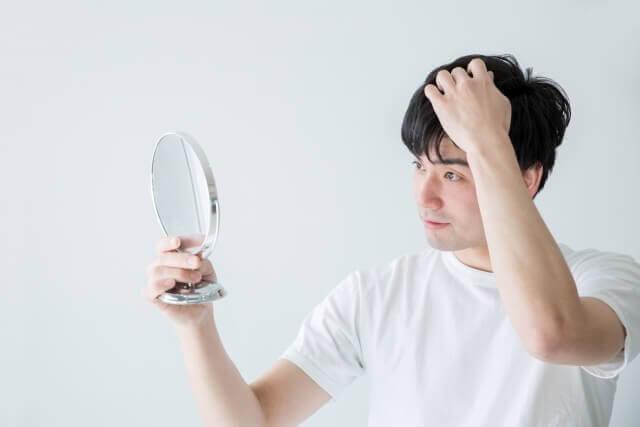 頭を気にする男性の写真
