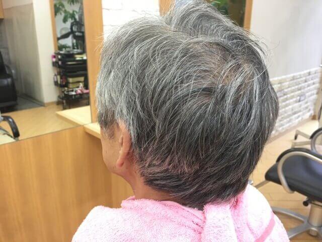 カラートリートメントを使う前の白髪の写真