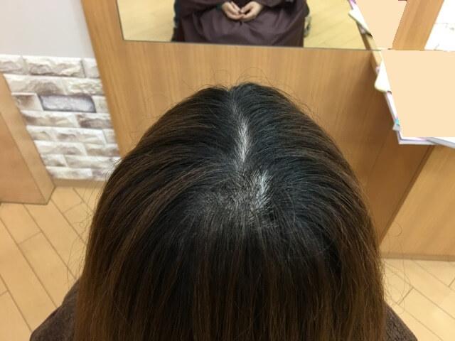 ヴィンテージグレイで染める前の髪の毛の写真トップ