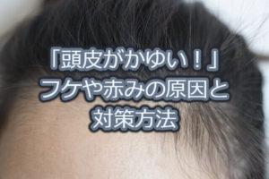頭皮のかゆみサムネイル