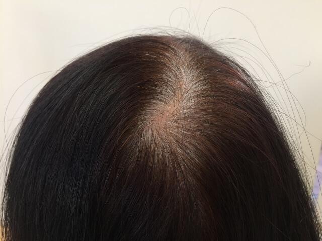 伸びた白髪の毛