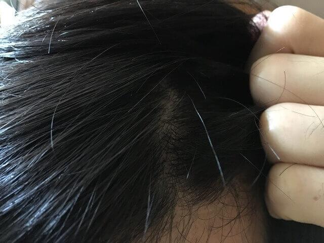 頭皮湿疹の状態11月27日その1