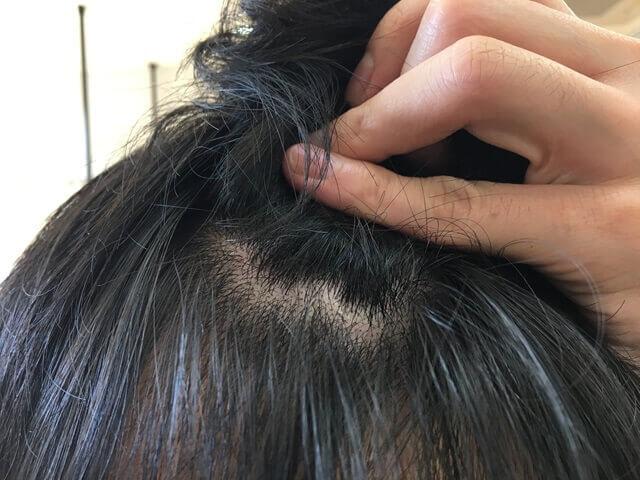 頭皮湿疹の状態翌年1月12日その2