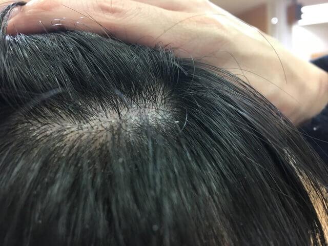 頭皮湿疹の状態11月29日その1