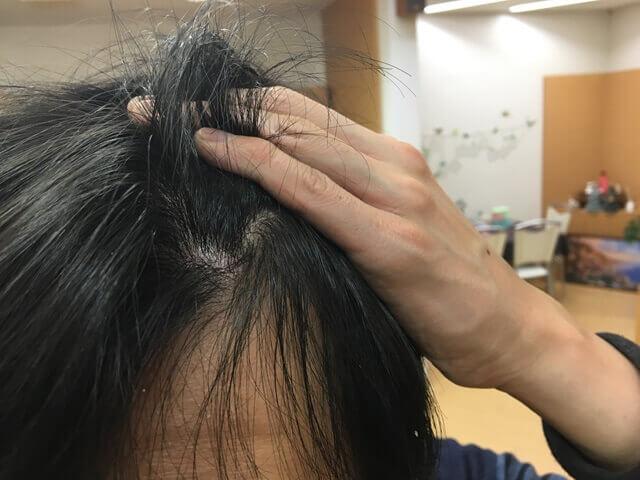 頭皮湿疹の状態12月27日その2