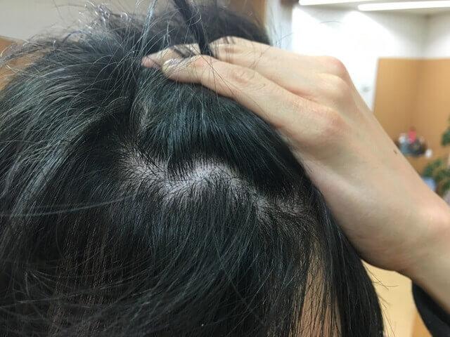 頭皮湿疹の状態12月27日