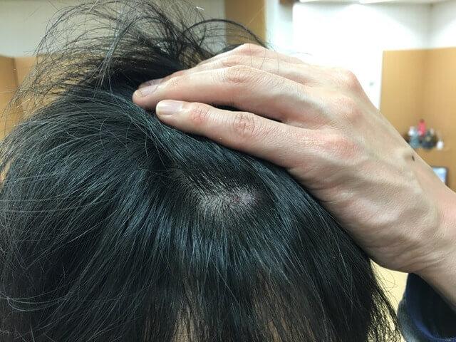 頭皮湿疹の状態12月19日
