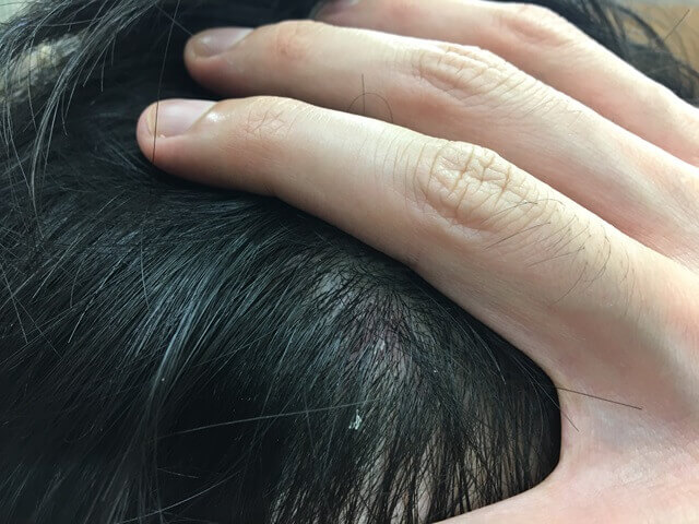 頭皮湿疹の状態10月21日その4