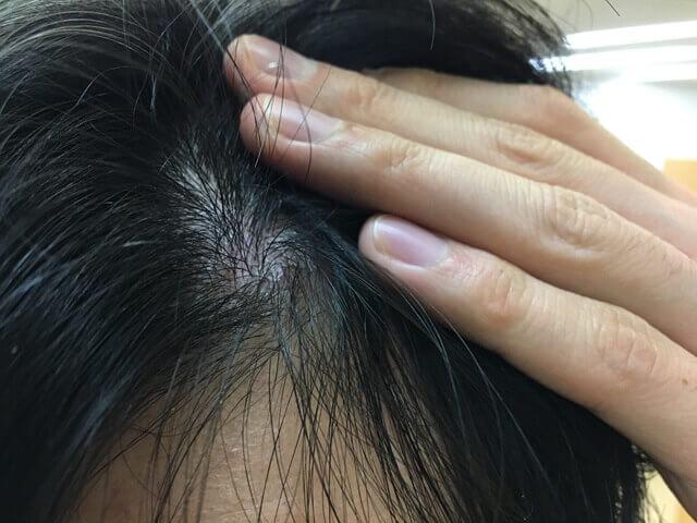 頭皮湿疹の状態12月18日