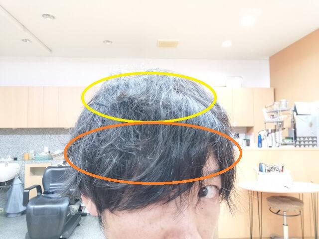メンズの縮毛矯正範囲一例