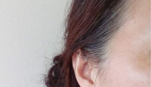 白髪が生える場所の意味と対策方法 前髪生え際に多い理由は?