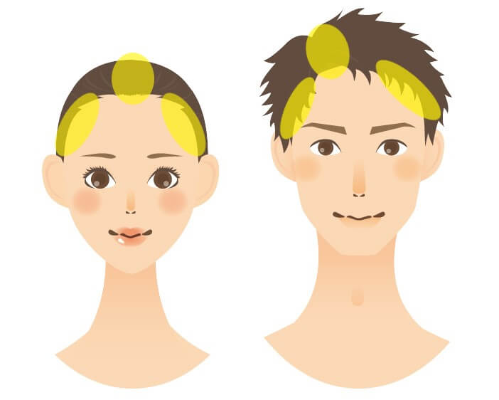 女性と男性白髪の生えやすい場所
