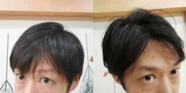 湯シャン1ヵ月間の効果を検証 抜け毛かゆみ臭いフケはどうなる?
