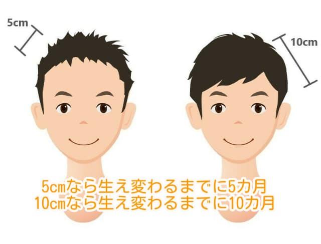 男性の髪が生え変わるまでの期間